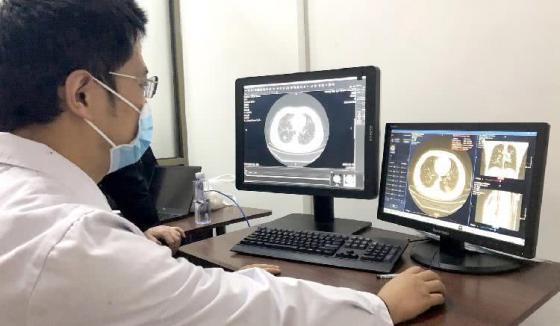 """科技战""""疫"""" 商汤科技肺部AI智能分析产品上线"""
